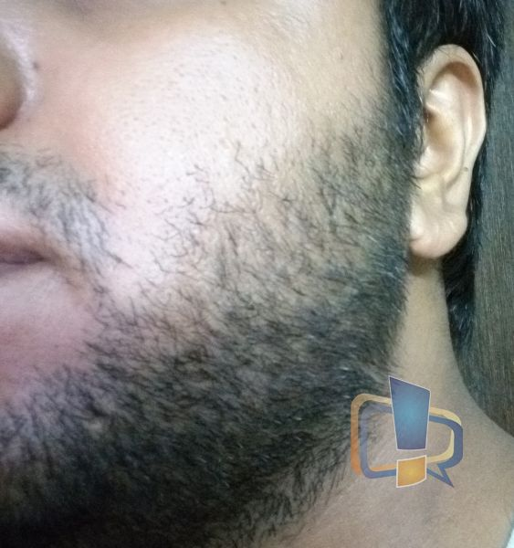 No Shave for 2 weeks